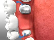 Dental Bridges3