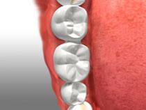 Dental Bridges in Oakville