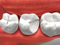Dental Crowns in St Albert