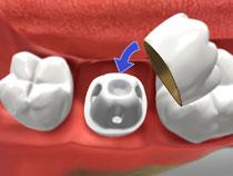 Dental Crowns in St Albert AB