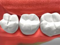 Dental Crowns in St. Albert, Alberta
