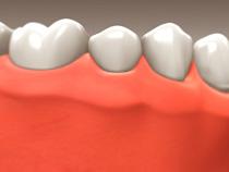 Dental Implant Restoration in Oakville ON
